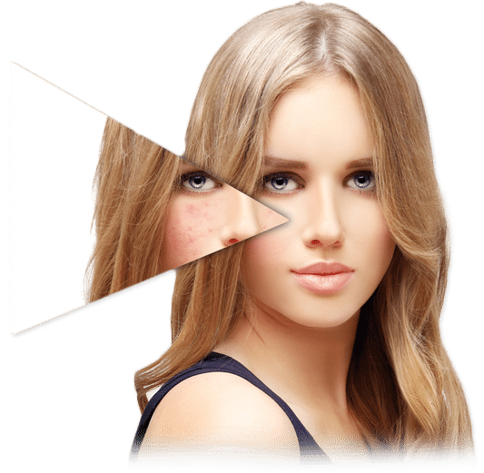 Pigmentation treatment and skin lightening