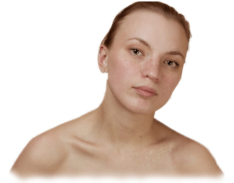 Post Surgical Scar Treatment